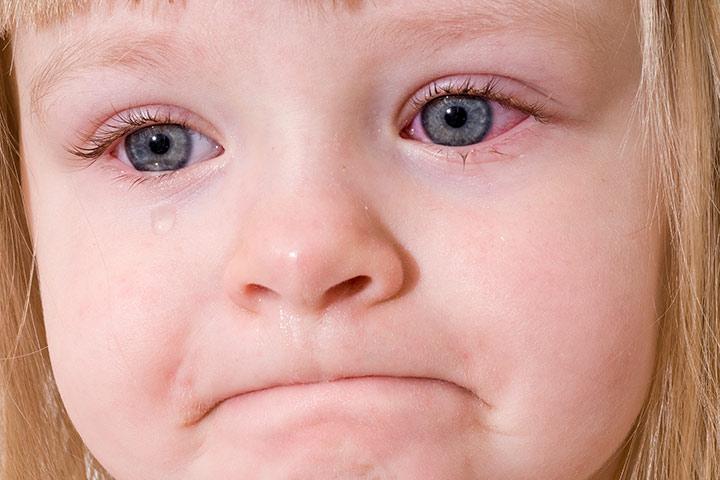Покраснение глаз у грудничка может вызываться различными причинами