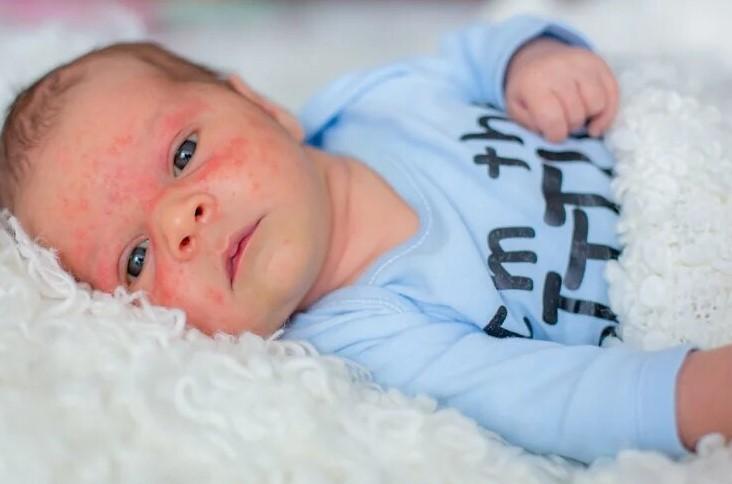 Высыпания на коже младенца могут быть сигналом заболевания
