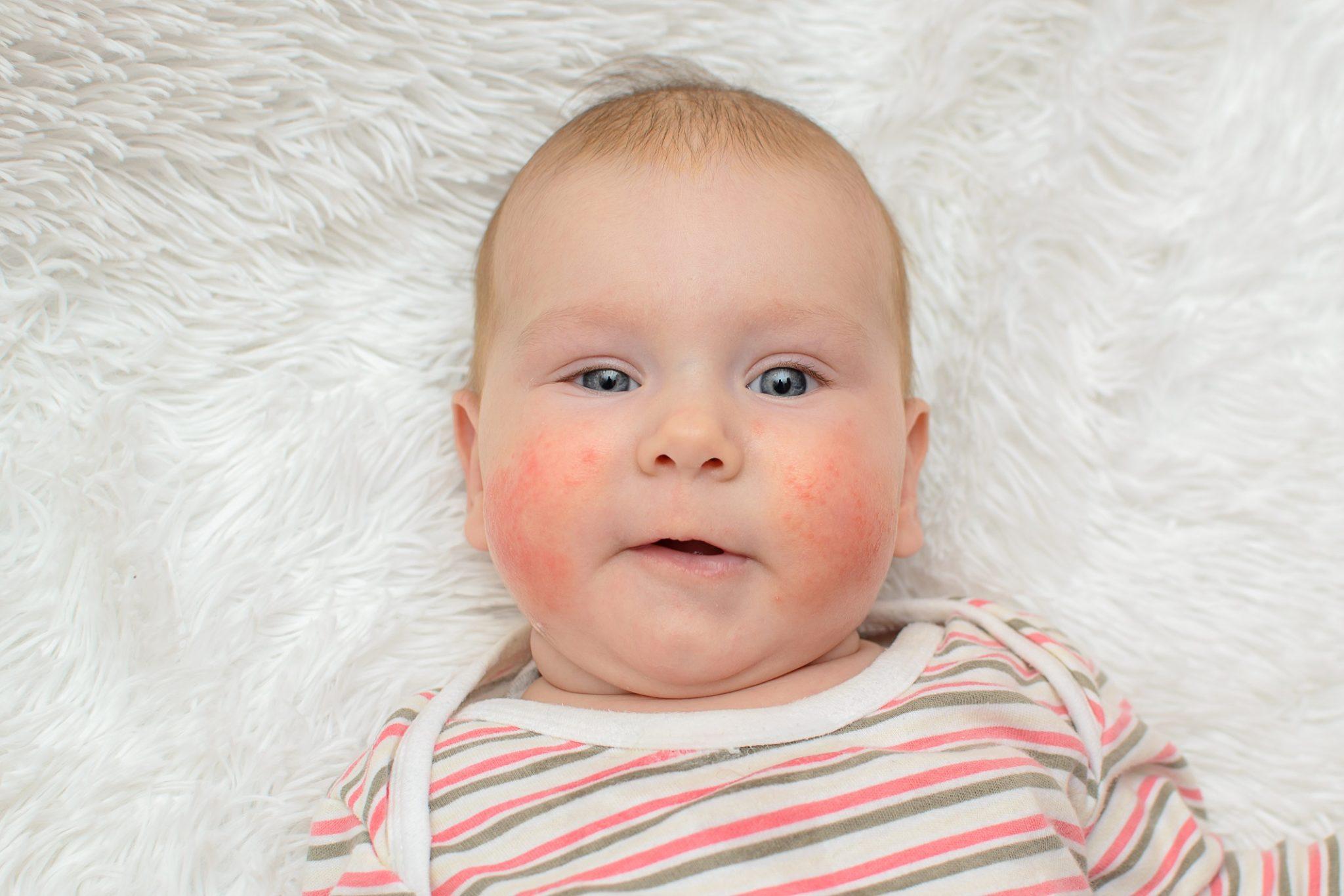 Малыш с красными щеками