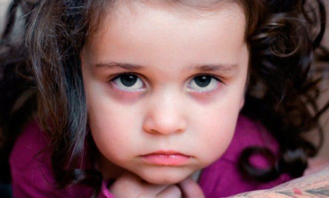 Синяки у ребенка под глазами