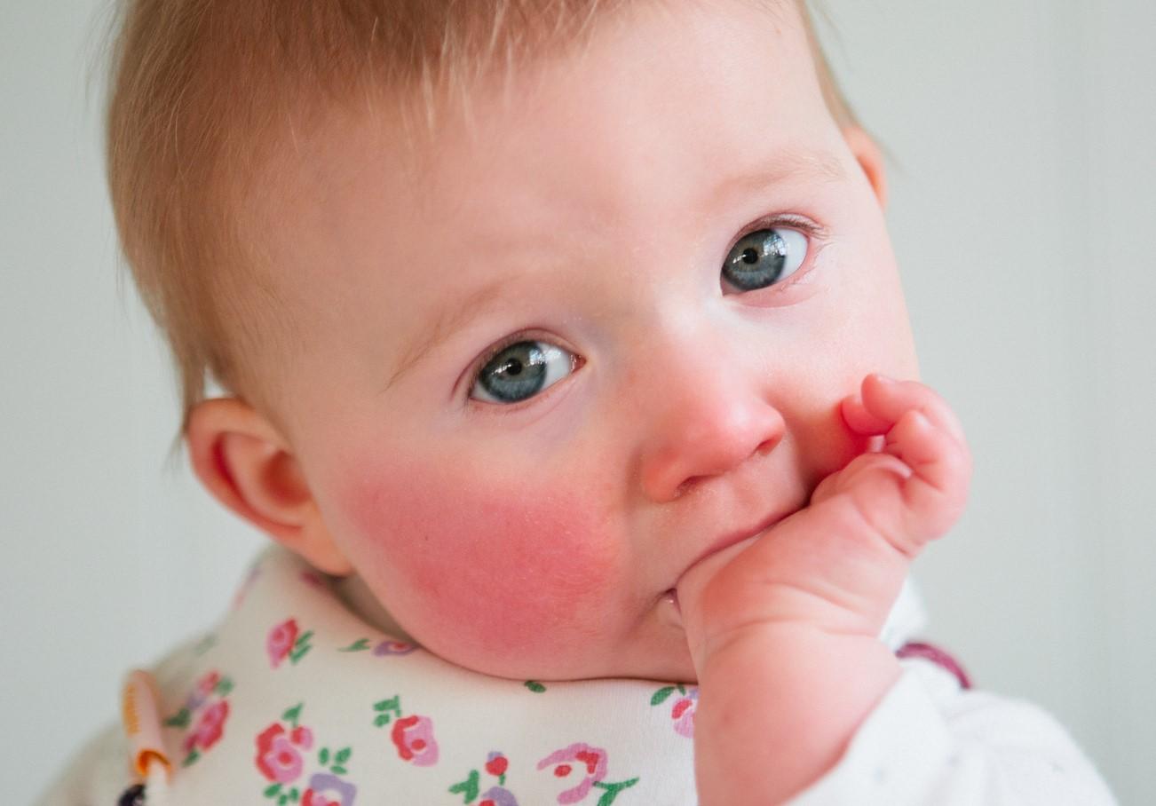 Аллергические реакции могут привести к поражению кожи у грудничка