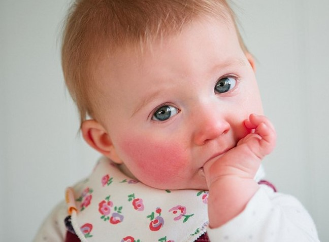 В группе риска заболевания глаз находятся дети-аллергики