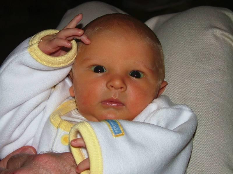 Младенец с желтушкой