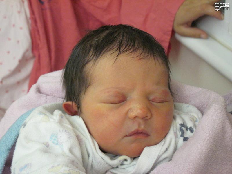 У новорожденного опухшие глаза