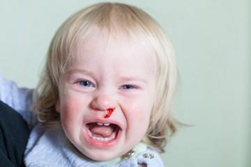 Иногда у детей бывают сопли с кровью