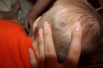Шишки на голове у детей – частое явление