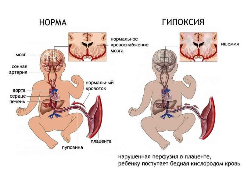 У ребенка нехватка кислорода в утробе матери