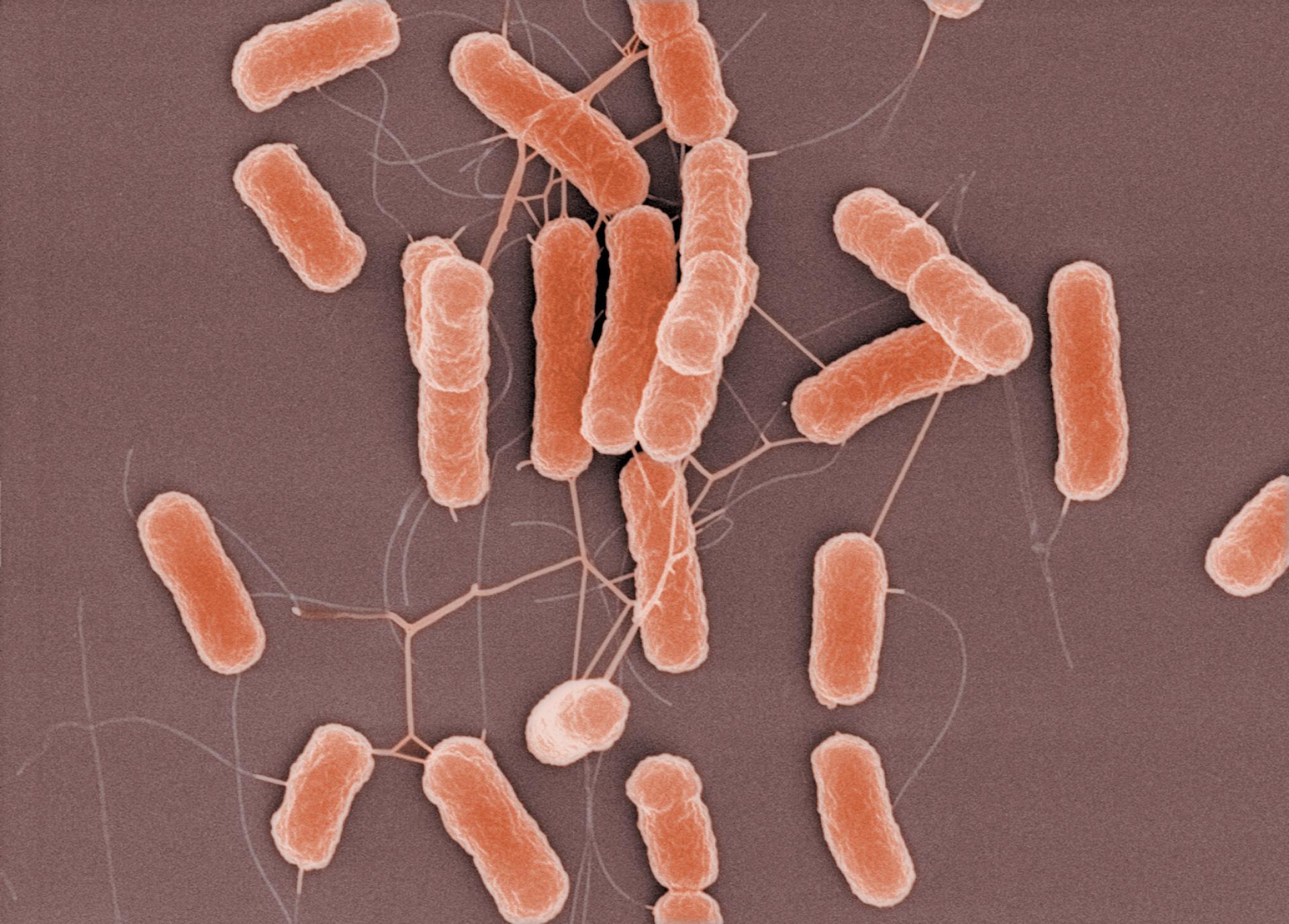 Кишечная палочка является частью микрофлоры желудка ребенка