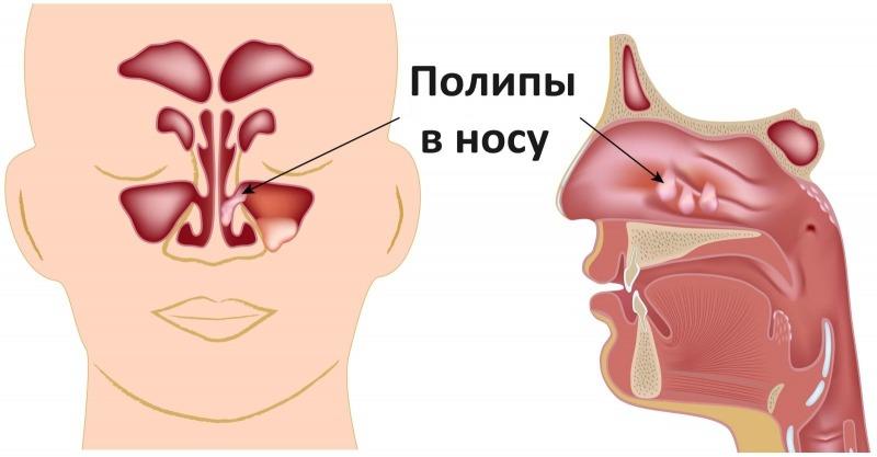 Носовые полипы