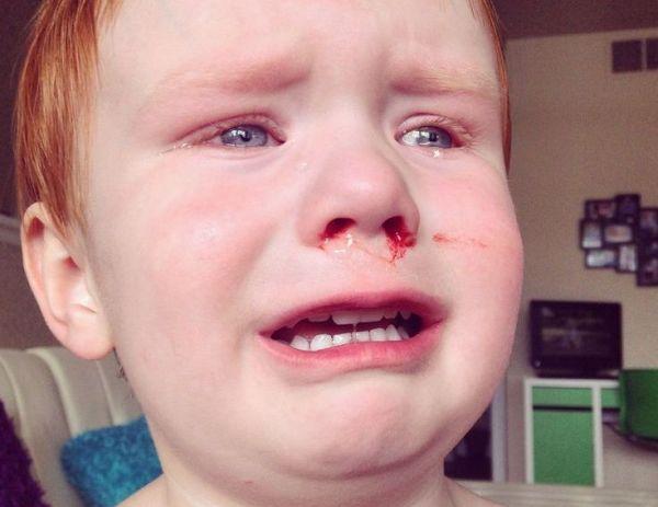 Ушиб носа у мальчика дошкольного возраста
