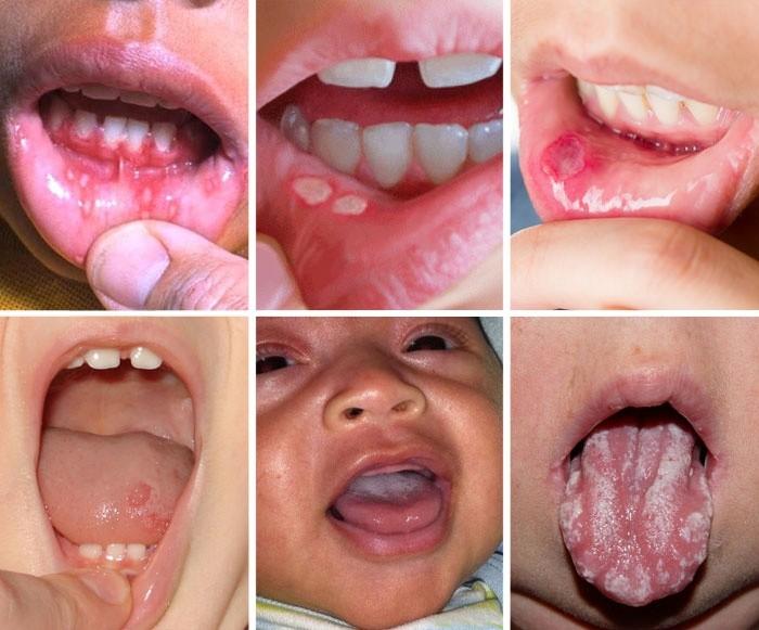 Стрептококковый стоматит у малыша