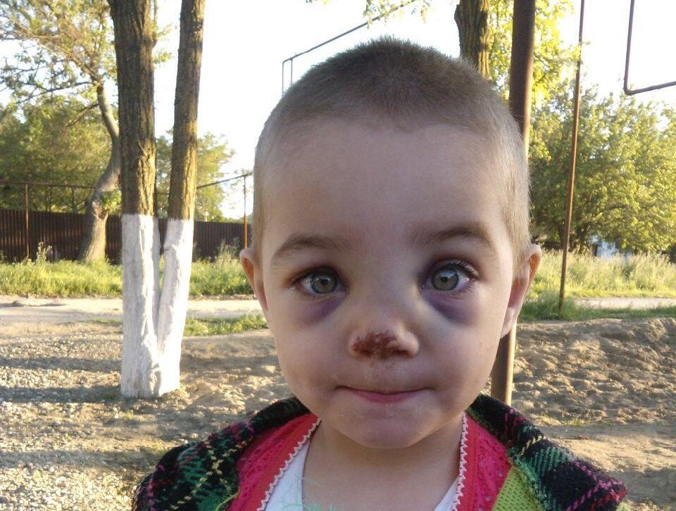 Девочка ударилась носом о кирпич