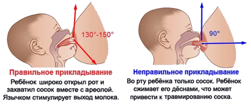 Правильное и неправильное прикладывание младенца к груди