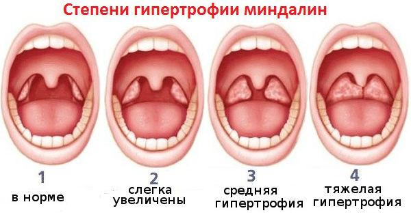 Стадии увеличения миндалин