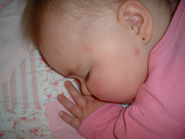 Сыпь не вызывает у ребенка физического дискомфорта