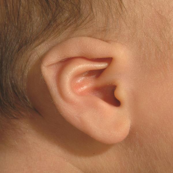 Деформация уха