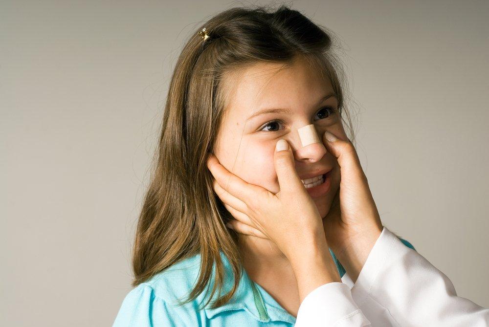 Диагностика перелома носа у детей