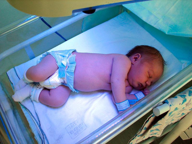 Лечение желтушки у новорожденных с помощью лампы