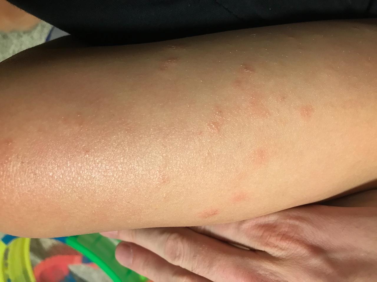Высыпания при аллергии отличаются местом и характером болячек