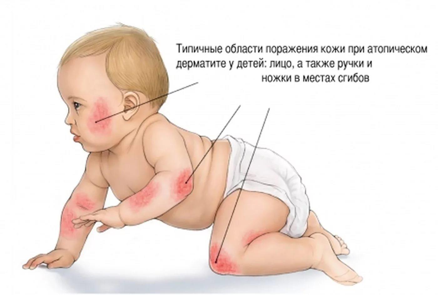 Атопический дерматит у младенца