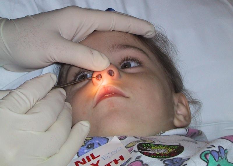 Врач обследует детский нос