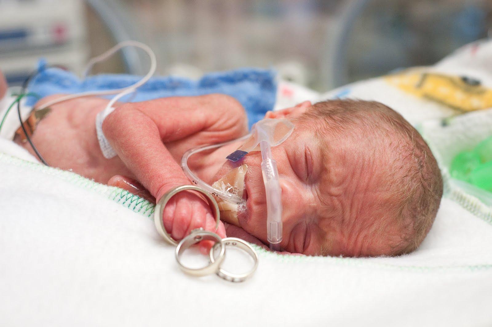 Недоношенный малыш отличается от ровесников