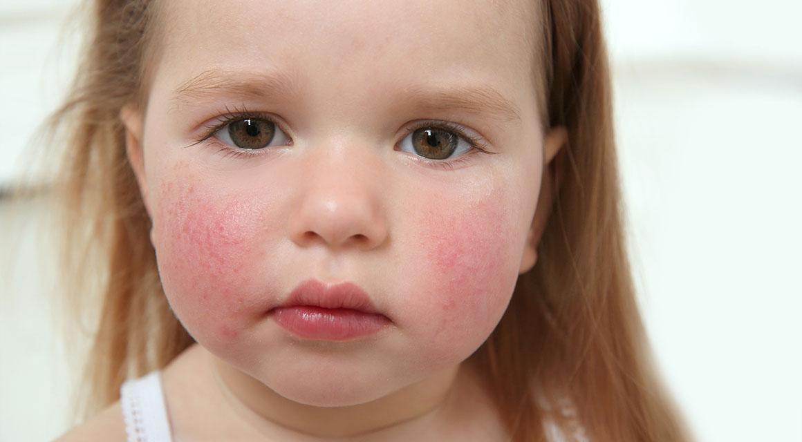 Характерный вид лица малыша, заболевшего скарлатиной