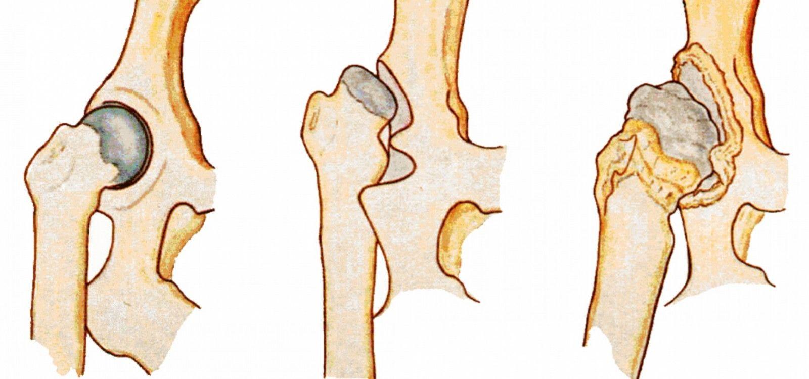 Что такое дисплазия тазобедренного сустава у ребенка 4 месяца thumbnail
