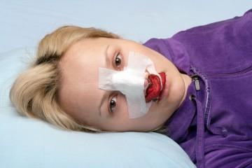 Лечение переломов костей носа