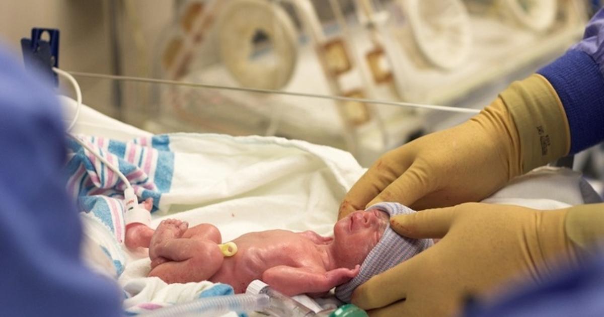 Хрупкость костей у малыша вызывается дефицитом кальция