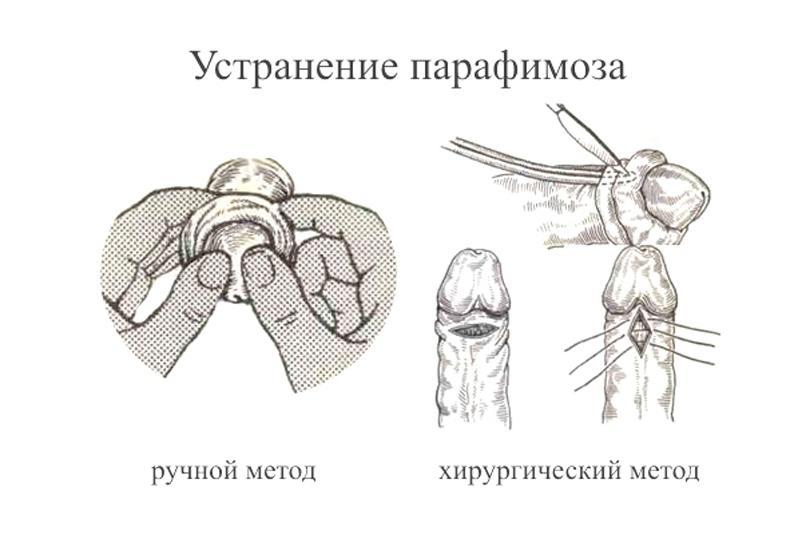 Устранение парафимоза