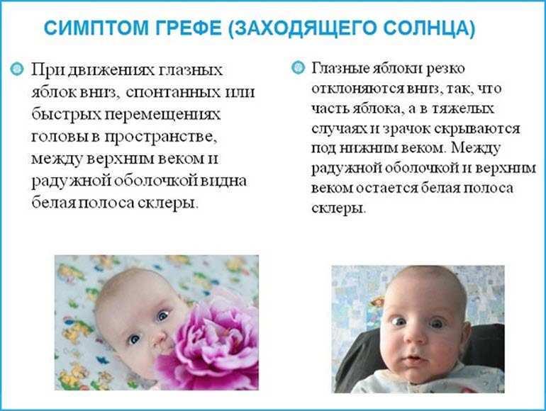 Признак ВЧД у ребенка – синдром Грефе