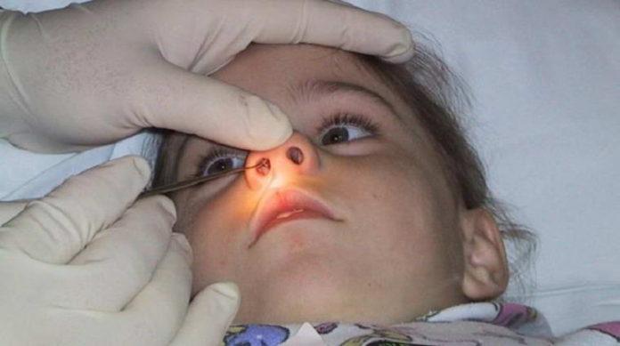 Подготовка к операции по устранению новообразований в носу