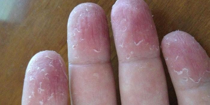 Кожа на пальцах рук облазит