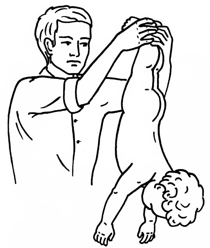 Помощь при попадании в гортань инородного тела