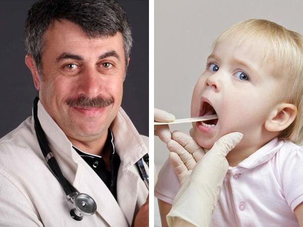 Доктор Комаровский о гландах