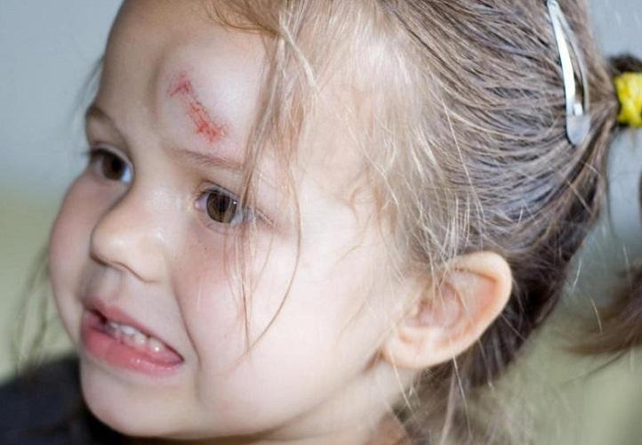 Девочка ударилась сильно лбом