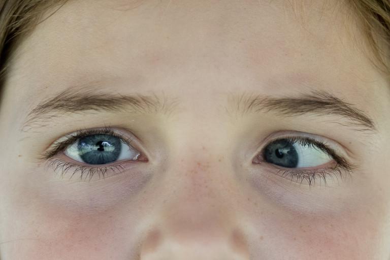 Разные по размеру зрачки иногда могут быть симптомом серьезной патологии