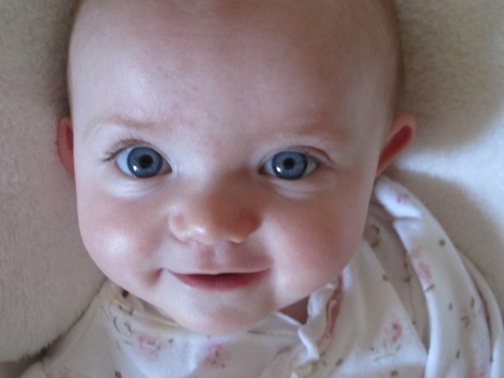 У большинства малышей анизокория со временем проходит