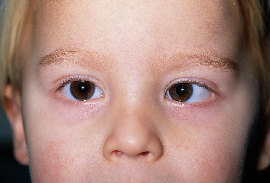 Если анизокория ярко выраженная, она, скорее всего, носит патологический характер