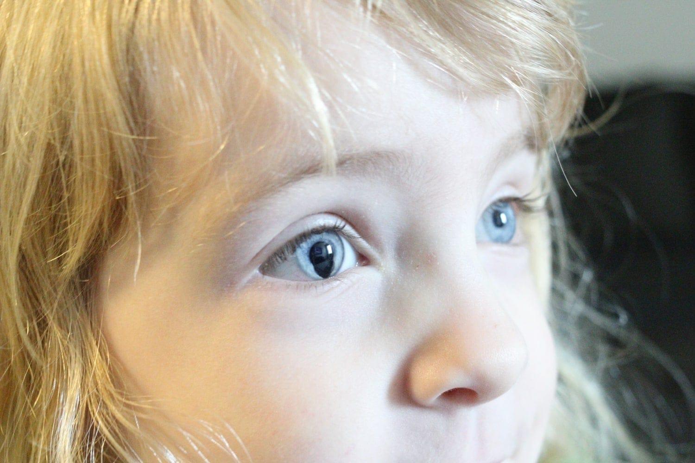 Разные по размеру зрачки чаще всего не влияют на зрение