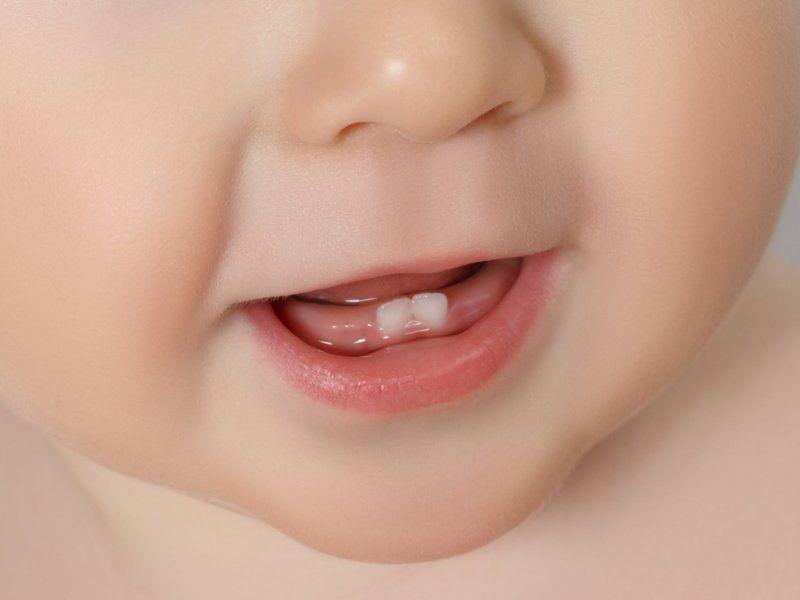 Прорезывание зубов – причина отечности
