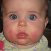Пищевая аллергия на щеках у грудничка – одно из самых распространенных явлений в педиатрии